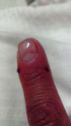 アナタが噛んだ人差し指が痛い♪